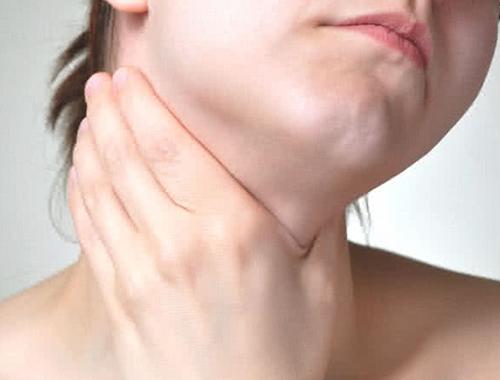 喉の病気 ごしま耳鼻咽喉科クリニック