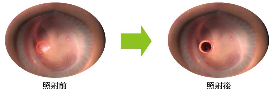 照射 おおてまち耳鼻咽喉科